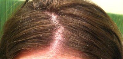 dry-scalp