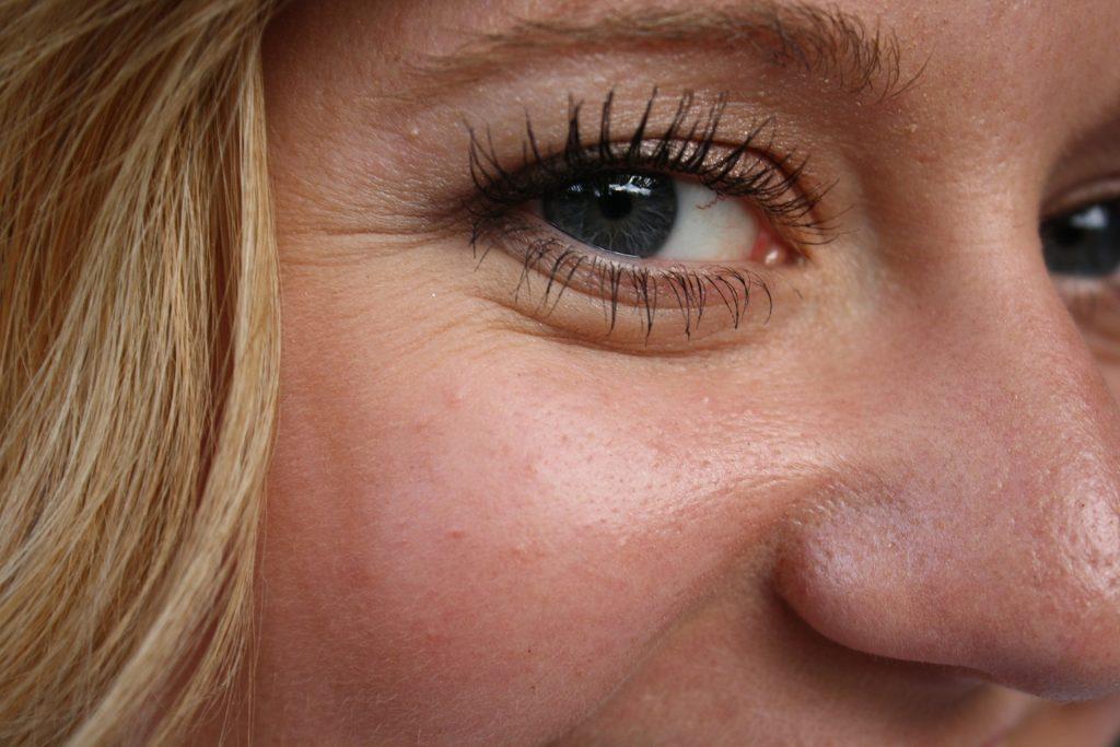 RF Skin Tightening Machines an Anti-Aging Miracle
