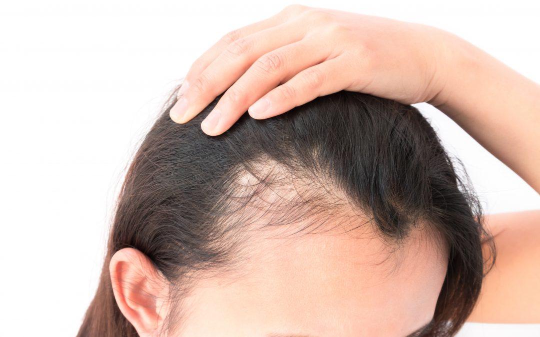 Premature Hair Loss in Women