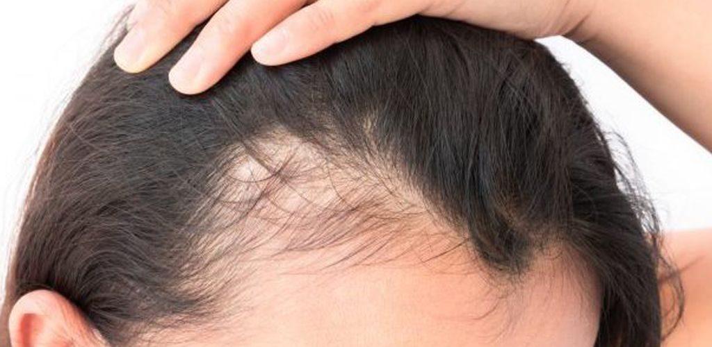 Premature-Hair-Loss