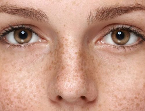 Best At Home Chemical Peels for Hyperpigmentation