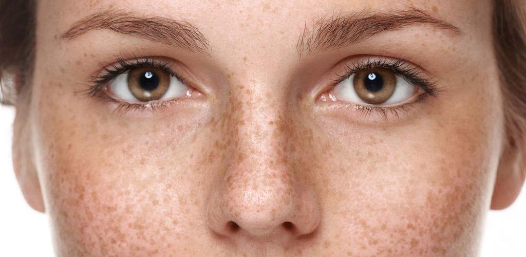 Best At Home Chemical Peels For Hyperpigmentation Skindeepr