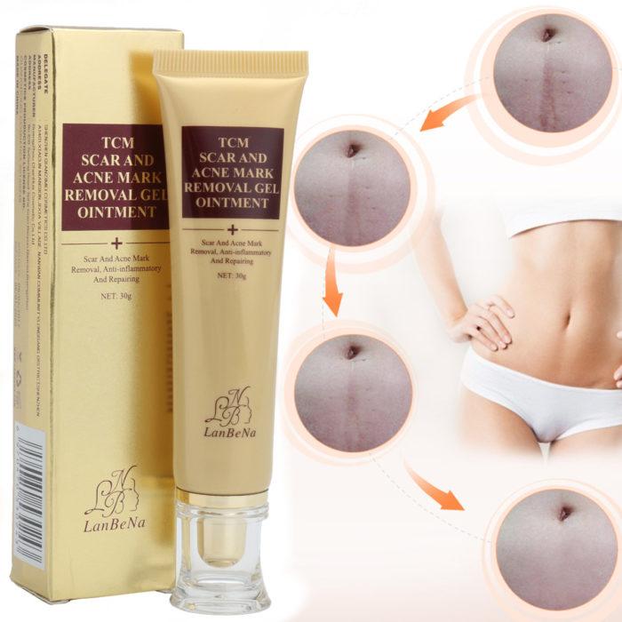 Acne Scar Cream Ginseng Essence Anti Acne Remover Cream Face Care Spots Stretch Marks Remove