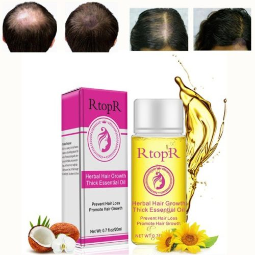 Anti Hair Loss Essential Liquid Herbal Promote Hair Growth Oil Thick Hair Treatment Oil Hair Care