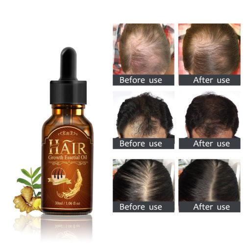 Hair Growth Fluid Hair Care Nourishing Essence Growth Essence
