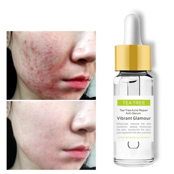 Tea Tree Remove Acne Essence Shrink Pores Repair Acne Marks Blackheads Essence Face Care 15ml