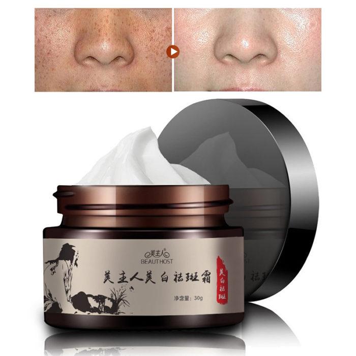 Whitening Freckle Cream Remove Sunburn Freckles Facial Cream Fade Dark Freckles Spots Face Care