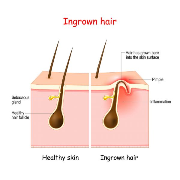 Best Shaving Products for Dry, Damaged Skin 2021 | SkinDeepr